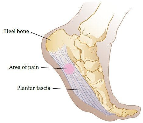 Do not have Surgery or Steroid shots for Plantar Fasciitis